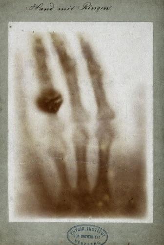 عکس اشعه ایکس