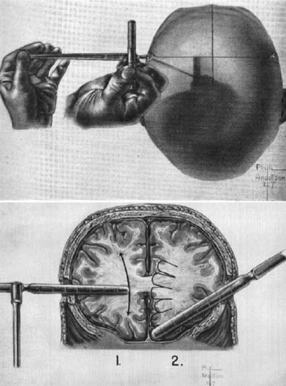 عمل سوراخ کردن جمجمه , تخریب بافت مغز