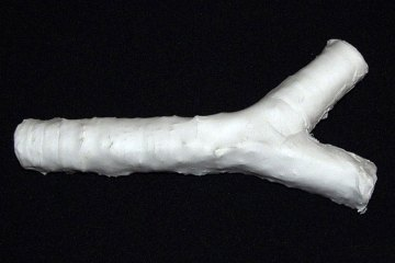 A man-made trachea, constructed of plastic and ready for seeding with a patient's stem cells</p> <p>Read more: http://healthland.time.com/2012/01/13/cancer-patient-receives-a-man-made-windpipe/#ixzz2CIPLeuUw