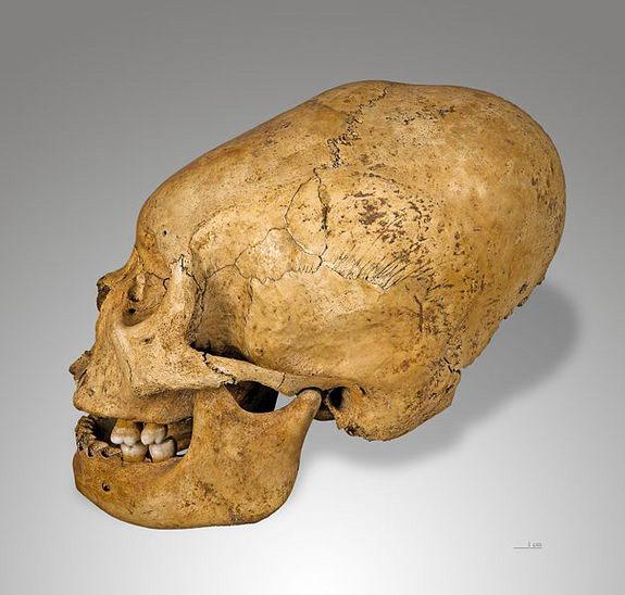 skull-deformation2