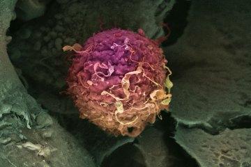 top10_medical_4types_breastcancer