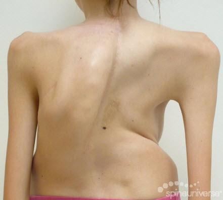 kyphoscoliosis,
